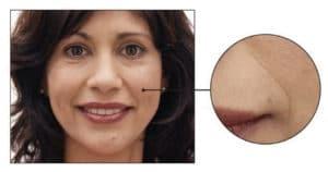 Skin Care concern: Fine Lines & Wrinkles