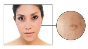 Skin Care Concern: Lack of Radiance