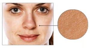 Skin Care concern: Rough, Uneven Texture