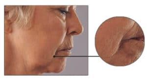 Skin care Concern: Sagging Skin