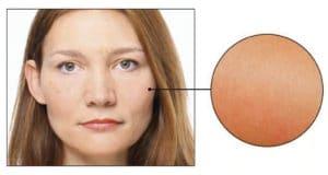 Skin Care Concern: Sensitive Skin